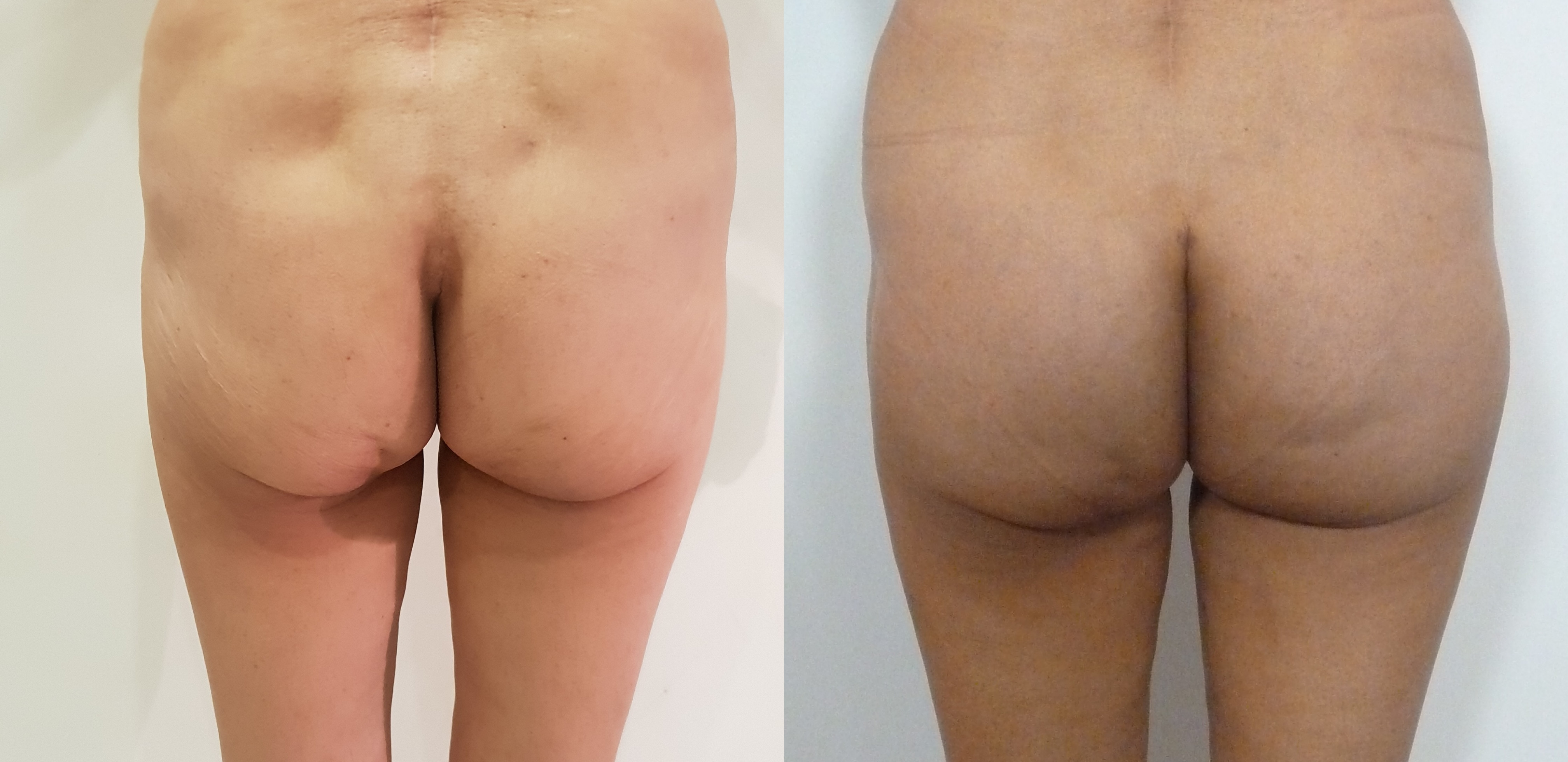 Buttock lifting