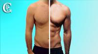 Visiter la galerie des photos avant/après des opérations esthétiques pour les hommes