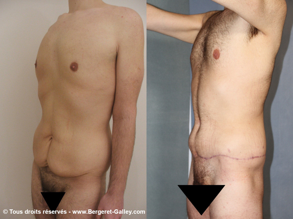 Before/After Bodylift  of a  man