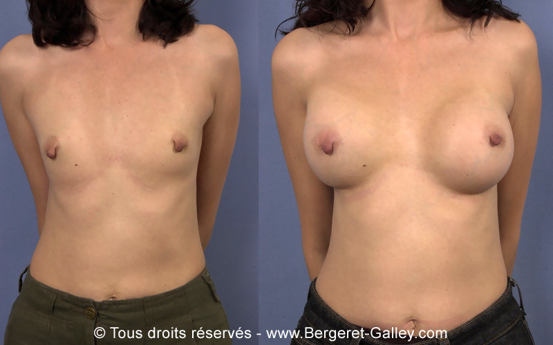 Before and after a very well indicated breast augmentation