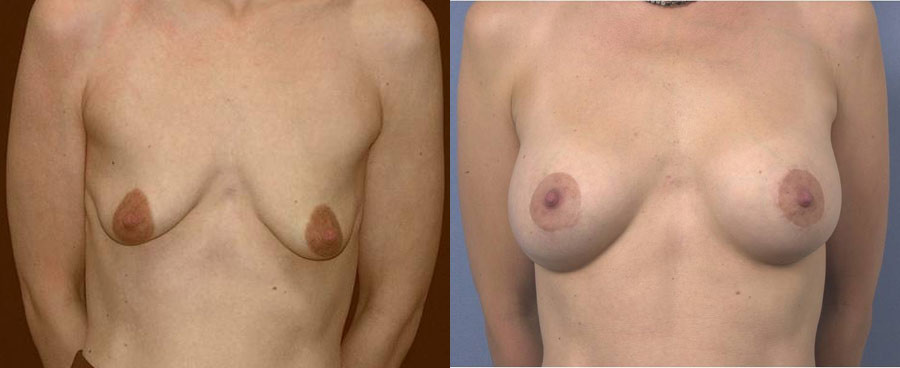 Result after mastopexy and breast implant