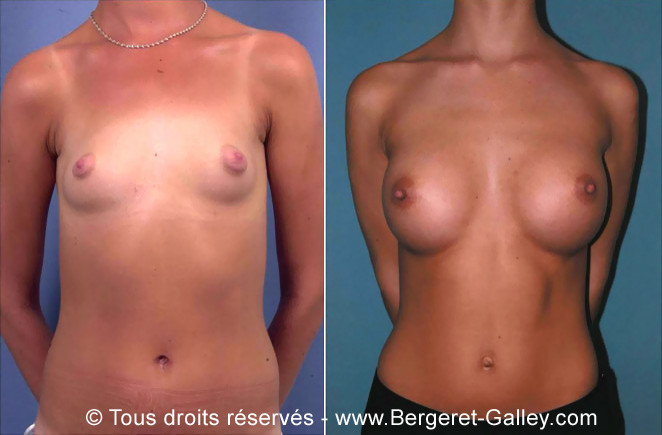 Mammary augmentation by implants
