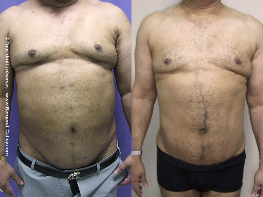 Before/After Bodylift for man