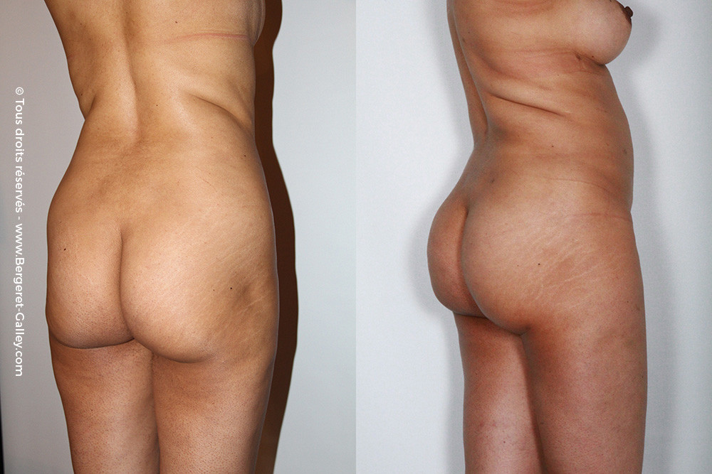 Before/After   Buttocks lipofilling