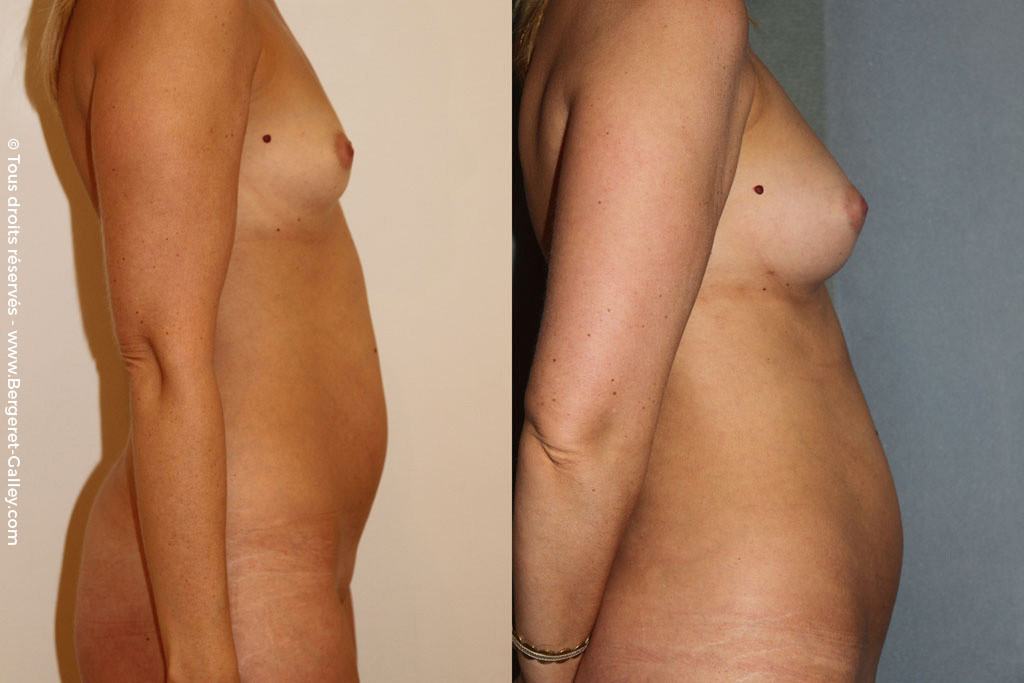 Lipofilling of the breast  Patient showing good result after reinjection of fat  taken from the abdomen with body jet