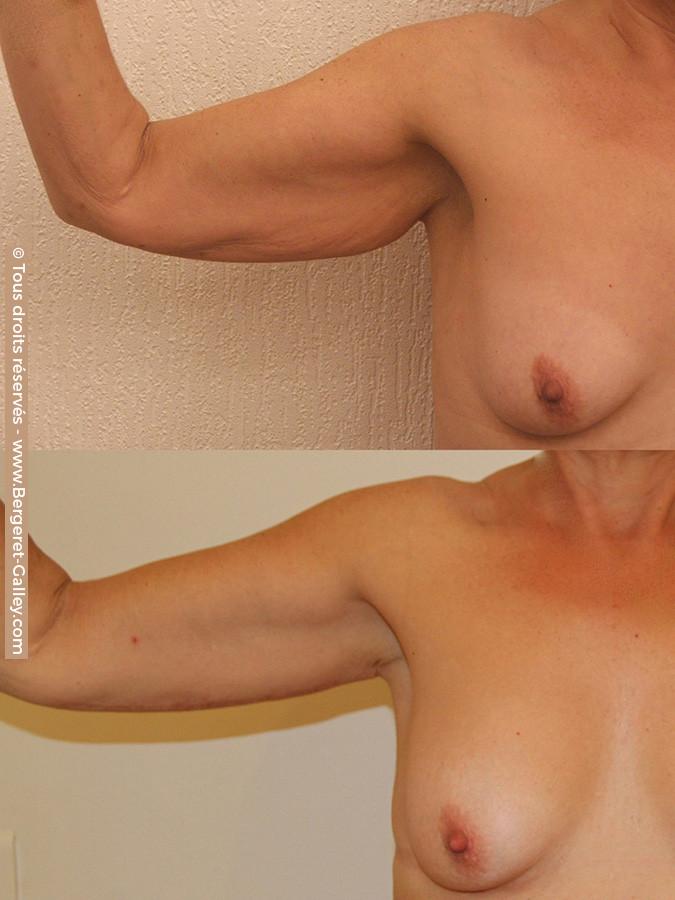 Résultat d'une brachioplastie  de face chez une femme