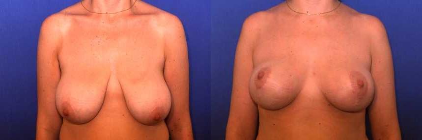 شد الثدي + الأطراف الصناعية