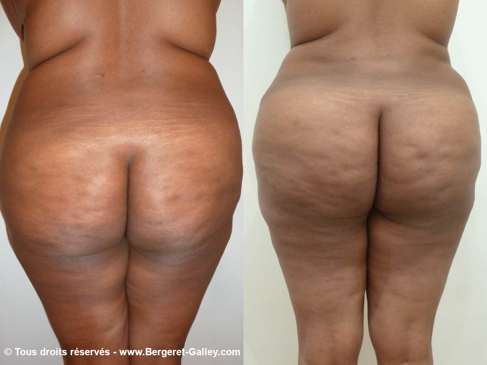 Before/After Buttocks lipofilling paris