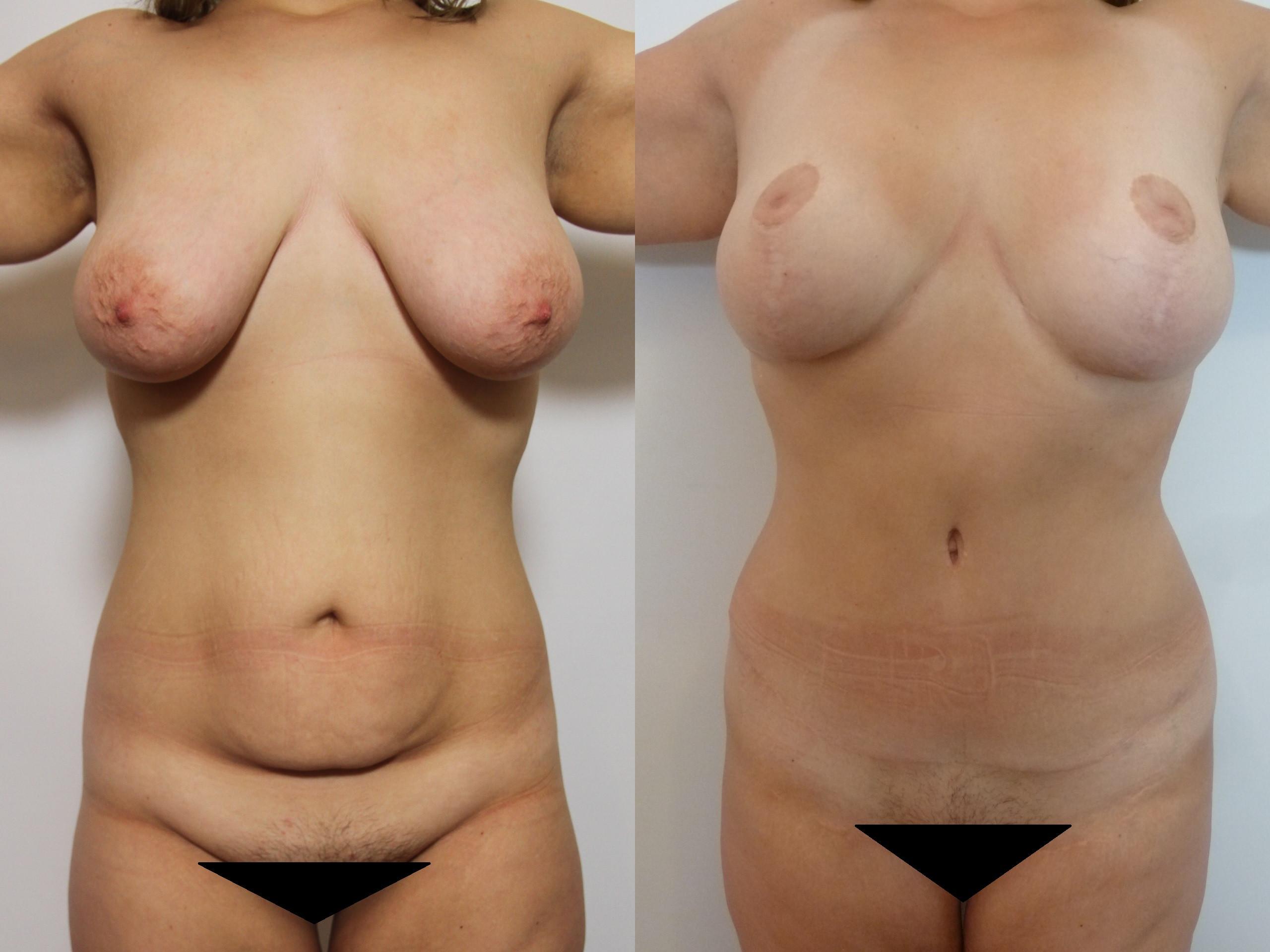 Chirurgie esthétique après la grossesse