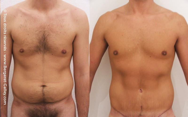 Résultat Plastie abdominale chez un homme de face