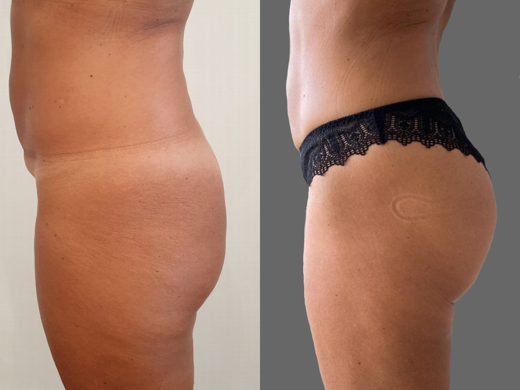 Before/After buttock implants