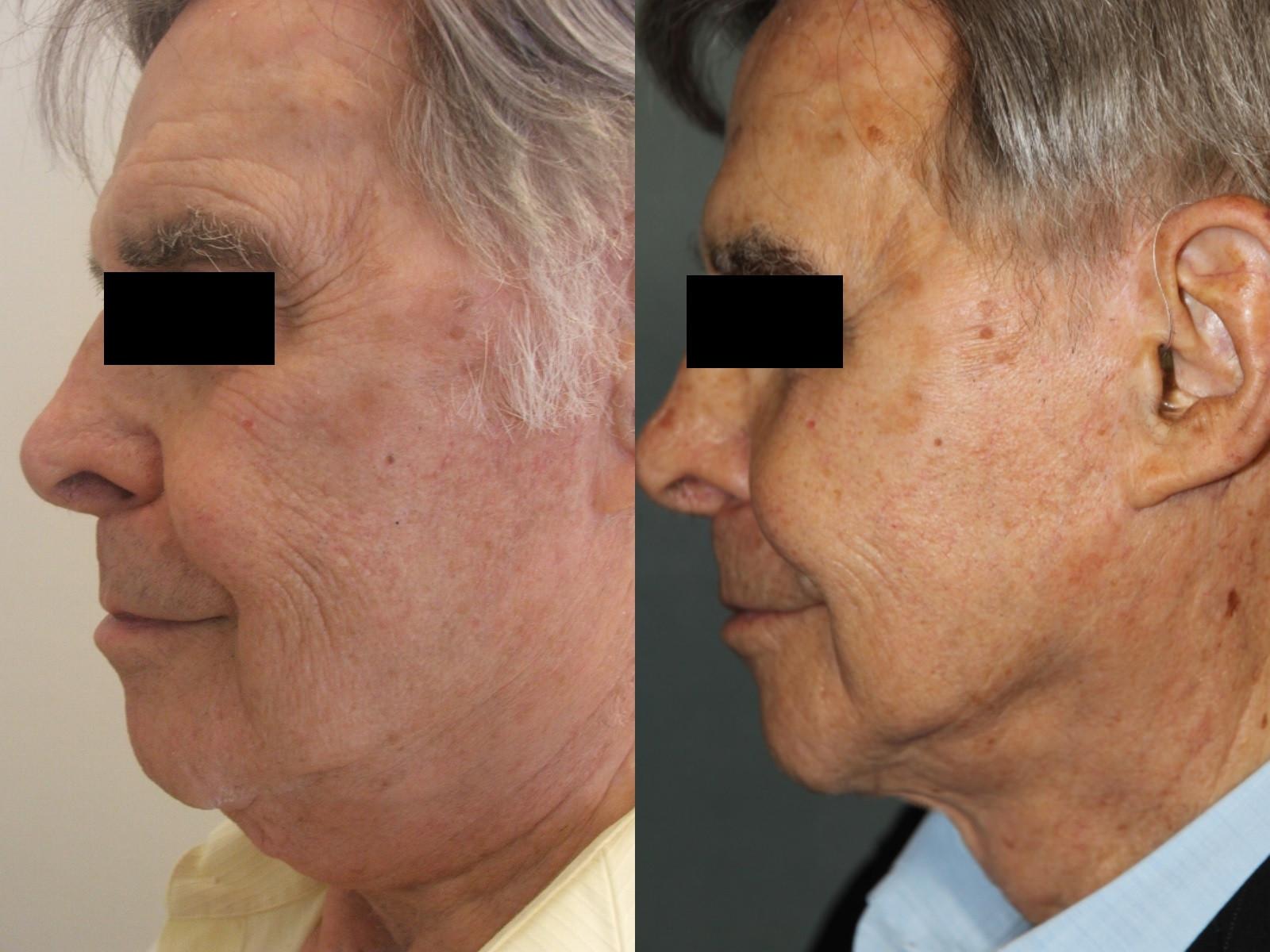 Lifting du visage ou cervico-facial homme