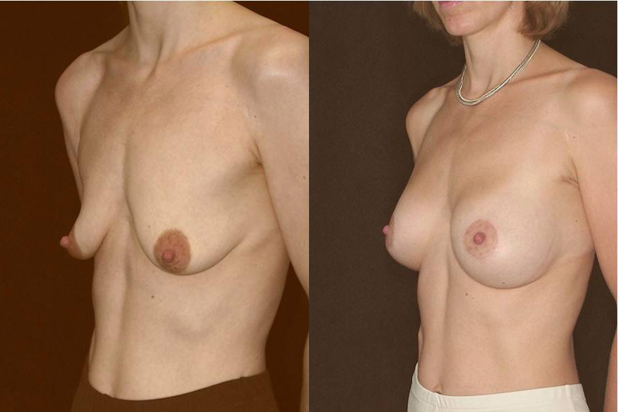 Before and after breast augmentation plus lifting