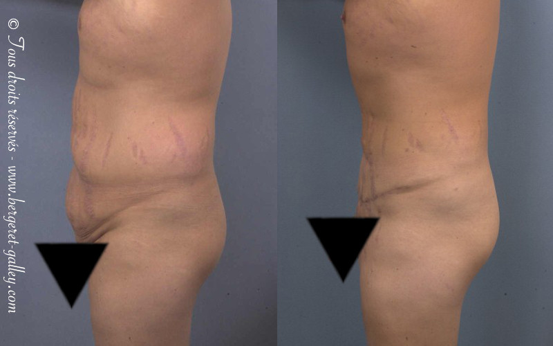 Abdominoplasty on a man in profil