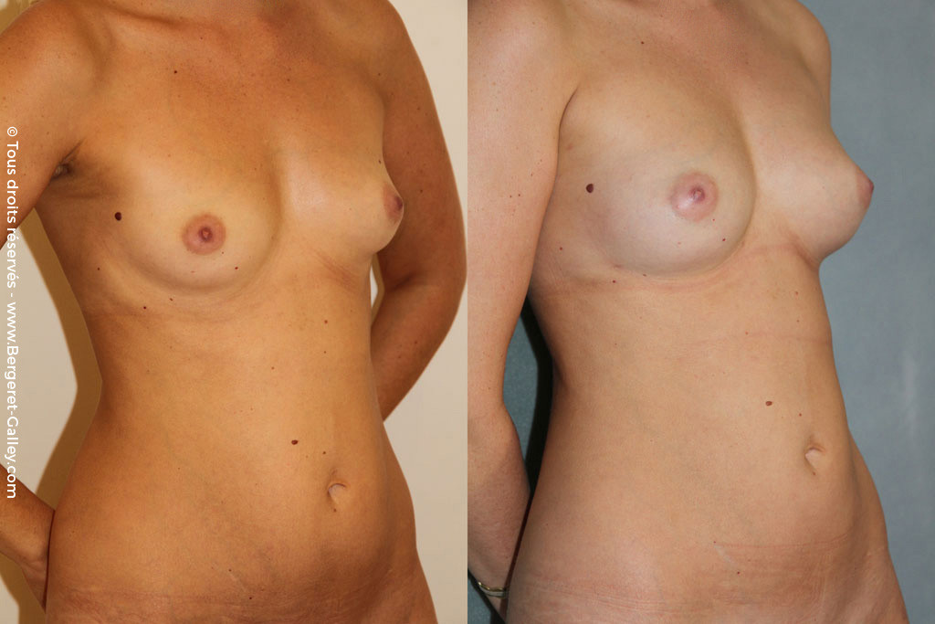 Lipofilling of the breasts